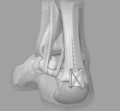 Achillessehnenruptur