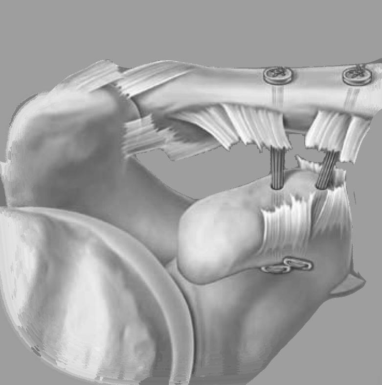 AC-Gelenksverletzung